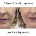 Collagen Stimulants